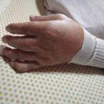 親指の爪の下部に肉(身)が入り込み、 指全体の指先も浮腫みがありました。